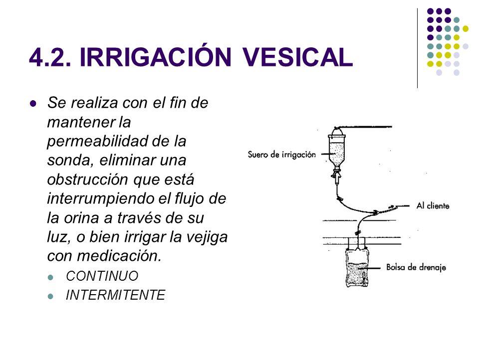 4.2. IRRIGACIÓN VESICAL Se realiza con el fin de mantener la permeabilidad de la sonda, eliminar una obstrucción que está interrumpiendo el flujo de l