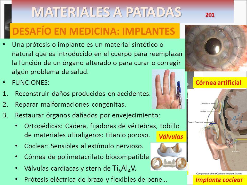 MATERIALES A PATADAS 201 DESAFÍO EN MEDICINA: IMPLANTES Escoliosis de más de 50º Necesitaría intervención inmovilizando la curva Una prótesis o implan