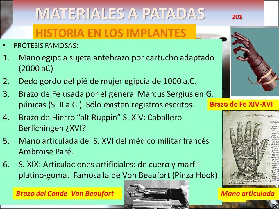 MATERIALES A PATADAS 201 HISTORIA EN LOS IMPLANTES La prótesis de la mujer egipcia era necesaria para su equilibrio al andar PRÓTESIS FAMOSAS: 1.Mano