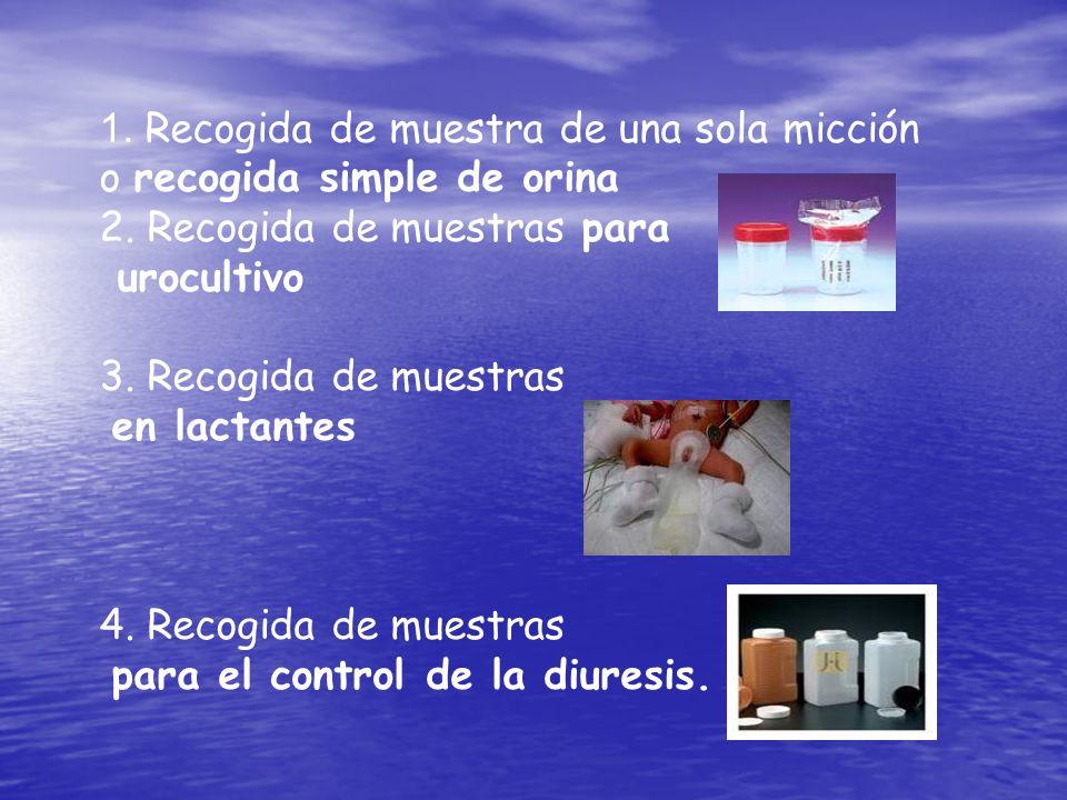 1. Recogida de muestra de una sola micción o recogida simple de orina 2. Recogida de muestras para urocultivo 3. Recogida de muestras en lactantes 4.