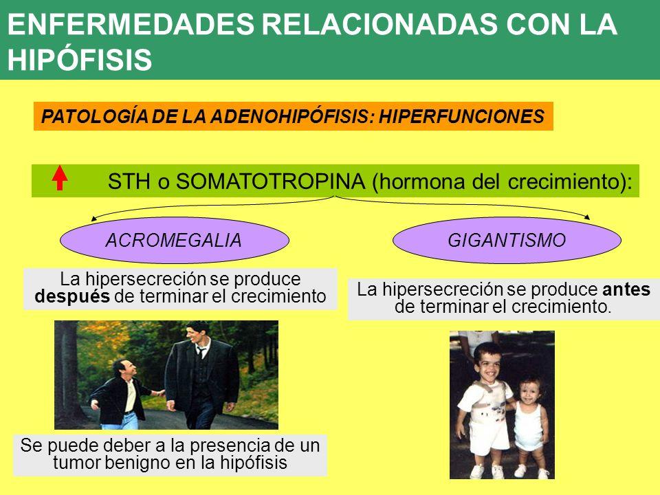 UD 7 ENFERMEDADES RELACIONADAS CON LA HIPÓFISIS PATOLOGÍA DE LA ADENOHIPÓFISIS: HIPERFUNCIONES STH o SOMATOTROPINA (hormona del crecimiento): ACROMEGA