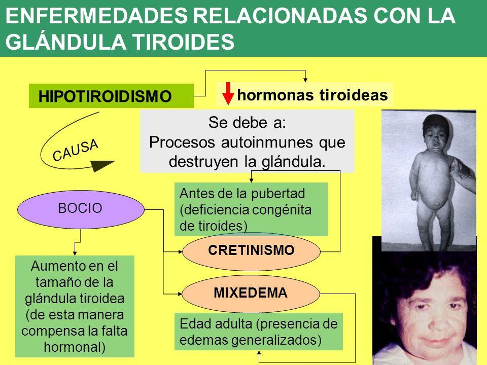 UD 7 8. ENFERMEDADES ENDOCRINAS HIPOTIROIDISMO BOCIO Se debe a: Procesos autoinmunes que destruyen la glándula. CAUSA hormonas tiroideas CRETINISMO MI
