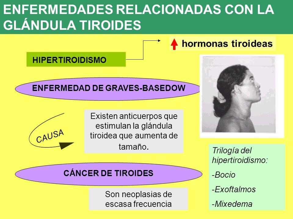 UD 7 8. ENFERMEDADES ENDOCRINAS HIPERTIROIDISMO ENFERMEDAD DE GRAVES-BASEDOW Existen anticuerpos que estimulan la glándula tiroidea que aumenta de tam