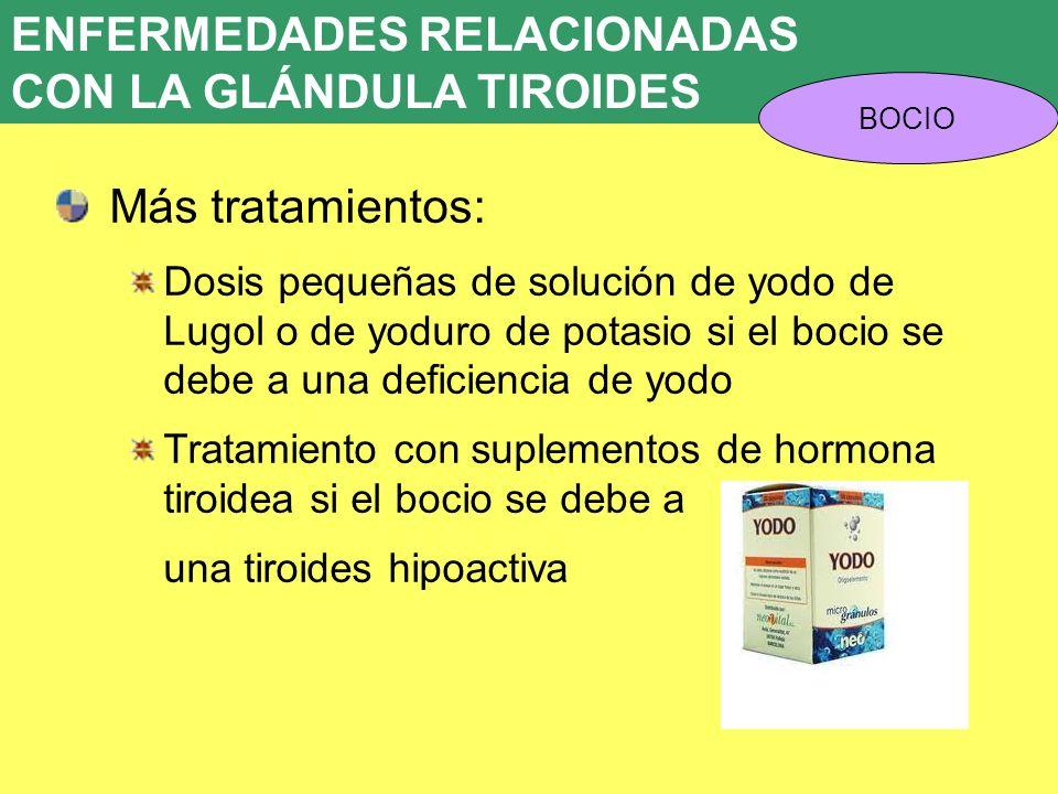 UD 7 ENFERMEDADES RELACIONADAS CON LA GLÁNDULA TIROIDES BOCIO Más tratamientos: Dosis pequeñas de solución de yodo de Lugol o de yoduro de potasio si