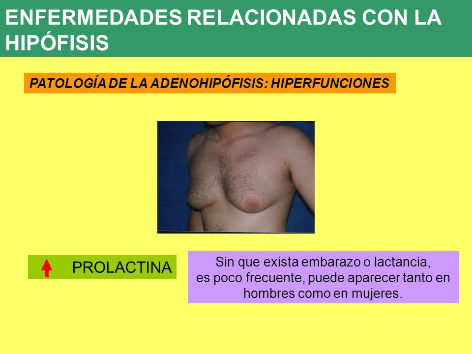 UD 7 ENFERMEDADES RELACIONADAS CON LA HIPÓFISIS PATOLOGÍA DE LA ADENOHIPÓFISIS: HIPERFUNCIONES PROLACTINA Sin que exista embarazo o lactancia, es poco
