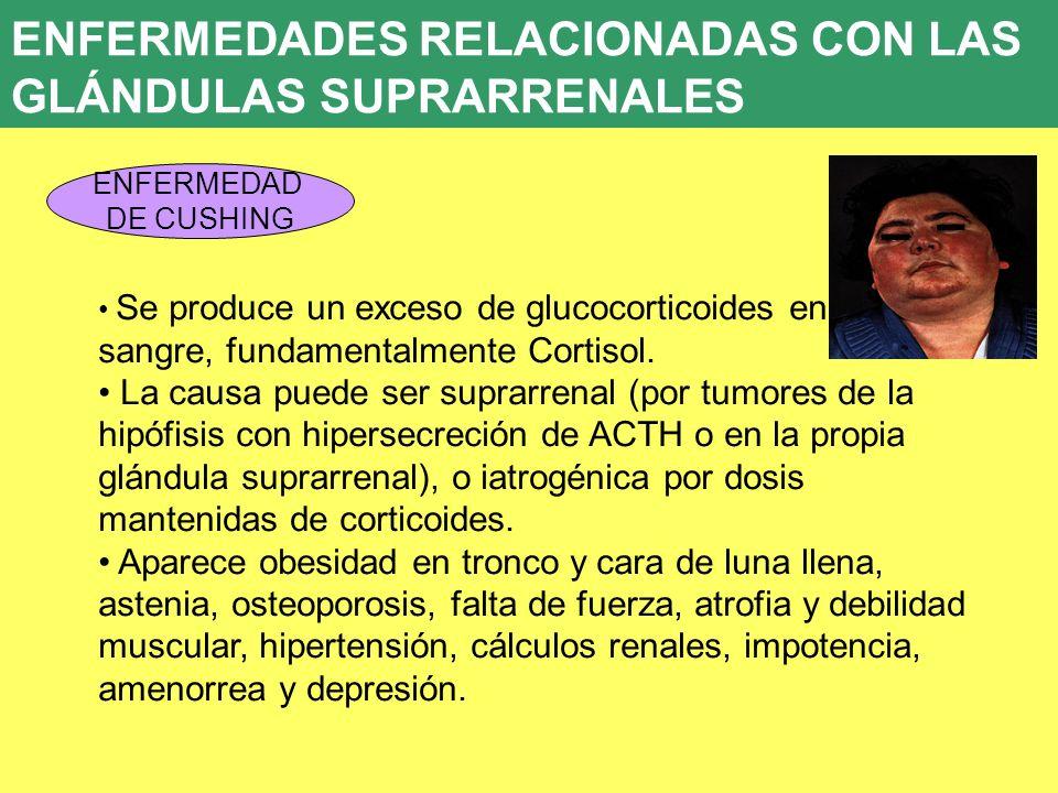 UD 7 ENFERMEDADES RELACIONADAS CON LAS GLÁNDULAS SUPRARRENALES ENFERMEDAD DE CUSHING Se produce un exceso de glucocorticoides en sangre, fundamentalme
