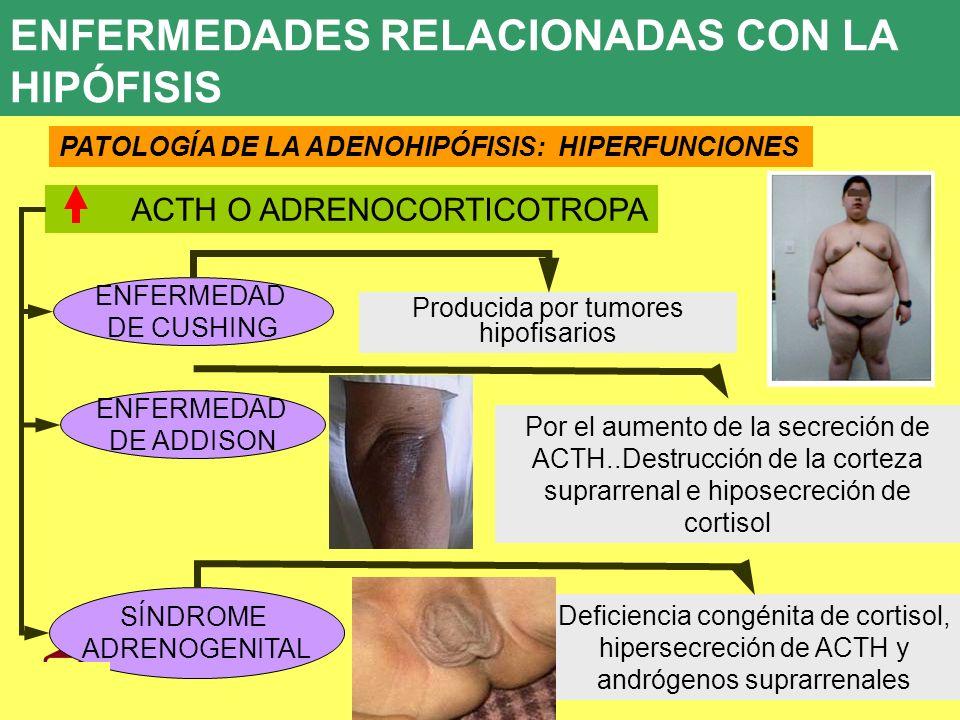UD 7 8. ENFERMEDADES ENDOCRINAS 8.1. ENFERMEDADES RELACIONADAS CON LA HIPÓFISIS PATOLOGÍA DE LA ADENOHIPÓFISIS: HIPERFUNCIONES ACTH O ADRENOCORTICOTRO