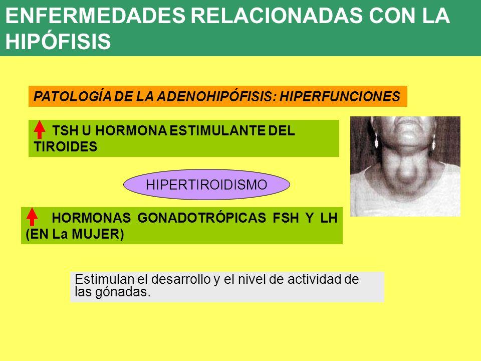 UD 7 8. ENFERMEDADES ENDOCRINAS PATOLOGÍA DE LA ADENOHIPÓFISIS: HIPERFUNCIONES TSH U HORMONA ESTIMULANTE DEL TIROIDES HIPERTIROIDISMO Estimulan el des