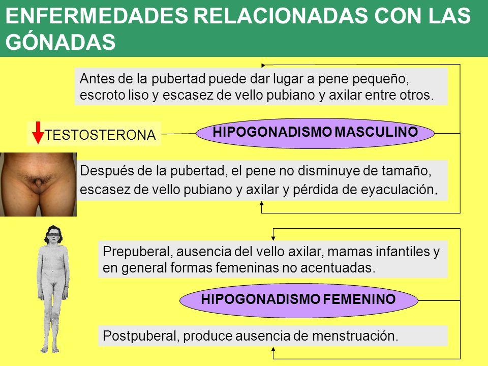 UD 7 8. ENFERMEDADES ENDOCRINAS HIPOGONADISMO MASCULINO Antes de la pubertad puede dar lugar a pene pequeño, escroto liso y escasez de vello pubiano y