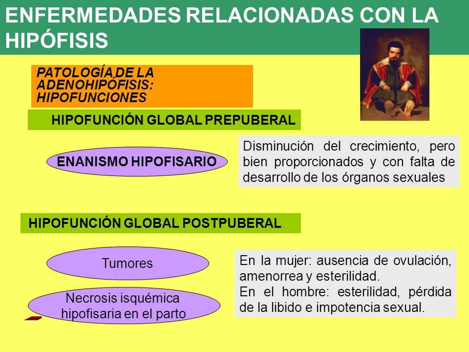 UD 7 8. ENFERMEDADES ENDOCRINAS PATOLOGÍA DE LA ADENOHIPÓFISIS: HIPOFUNCIONES HIPOFUNCIÓN GLOBAL PREPUBERAL ENANISMO HIPOFISARIO Tumores Disminución d