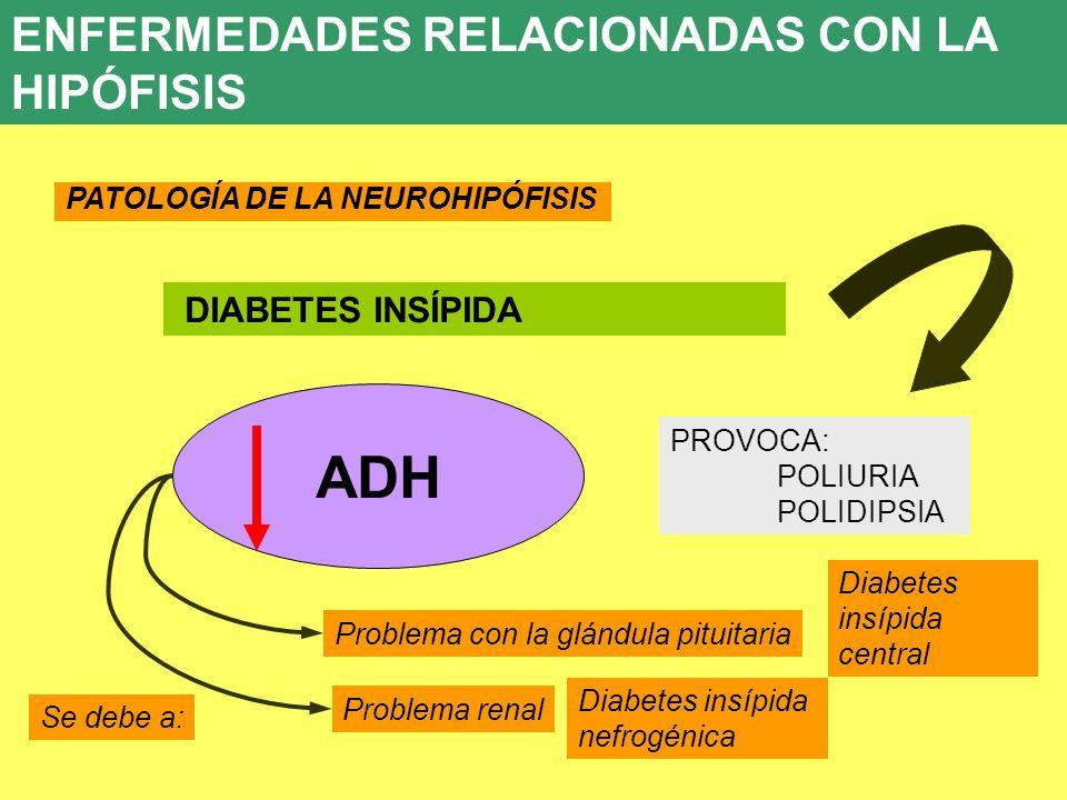 UD 7 8. ENFERMEDADES ENDOCRINAS PATOLOGÍA DE LA NEUROHIPÓFISIS DIABETES INSÍPIDA ADH PROVOCA: POLIURIA POLIDIPSIA Problema con la glándula pituitaria