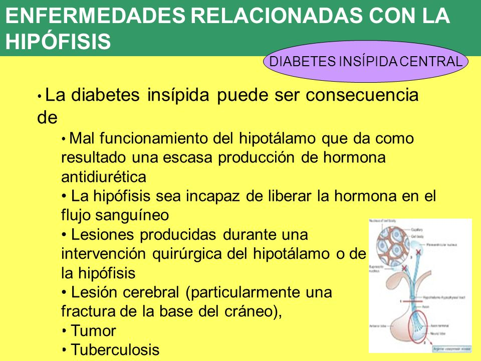 UD 7 ENFERMEDADES RELACIONADAS CON LA HIPÓFISIS DIABETES INSÍPIDA CENTRAL La diabetes insípida puede ser consecuencia de Mal funcionamiento del hipotá