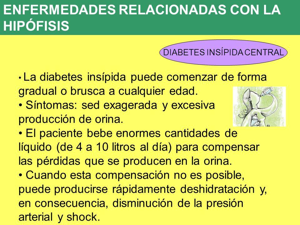 UD 7 ENFERMEDADES RELACIONADAS CON LA HIPÓFISIS DIABETES INSÍPIDA CENTRAL La diabetes insípida puede comenzar de forma gradual o brusca a cualquier ed