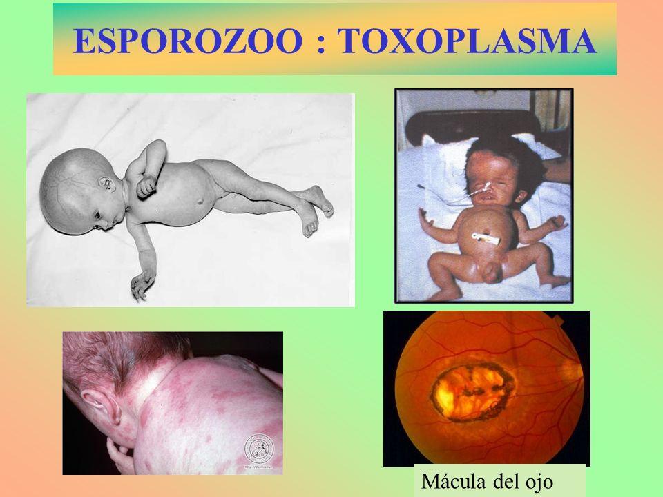 ESPOROZOO : TOXOPLASMA Mácula del ojo