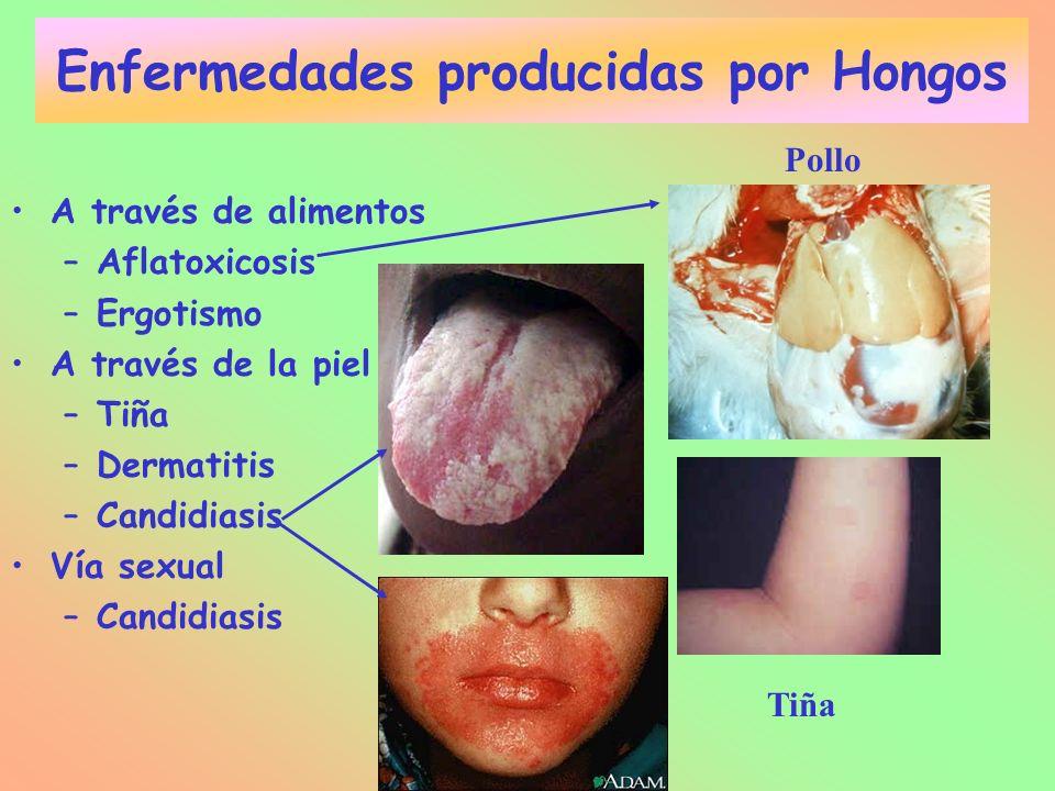 Enfermedades producidas por Hongos A través de alimentos –Aflatoxicosis –Ergotismo A través de la piel –Tiña –Dermatitis –Candidiasis Vía sexual –Cand
