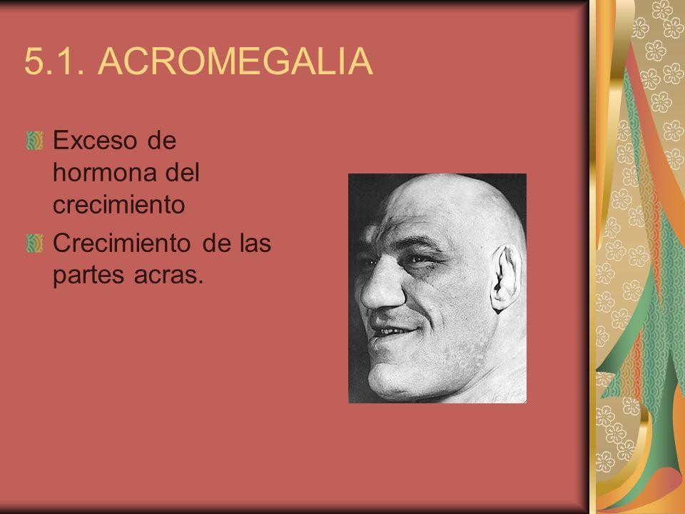 5.1. ACROMEGALIA Exceso de hormona del crecimiento Crecimiento de las partes acras.