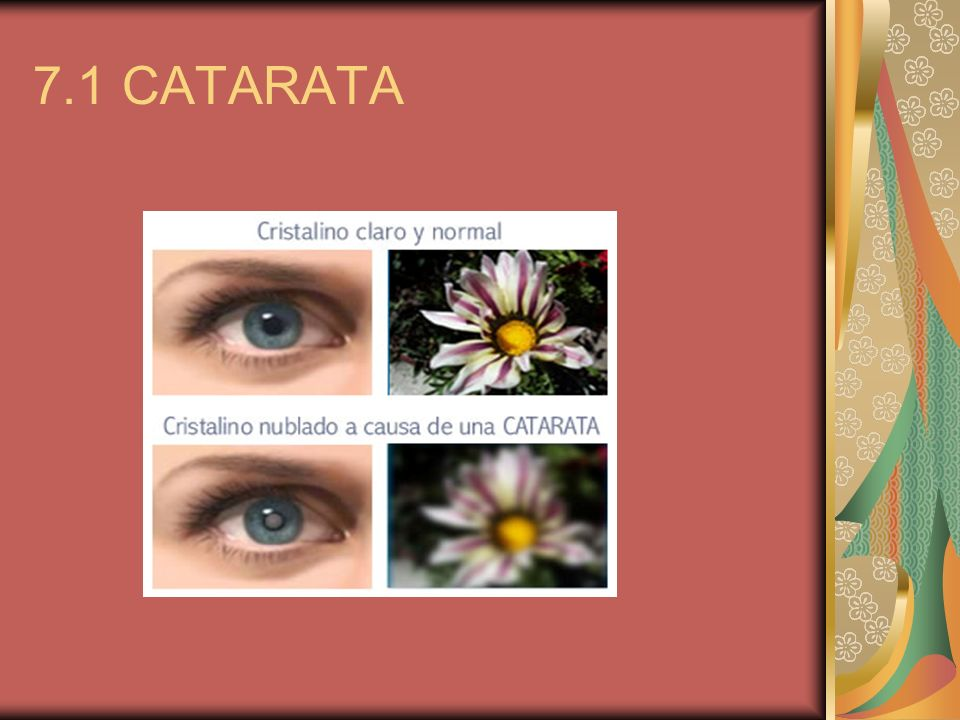 7.1 CATARATA
