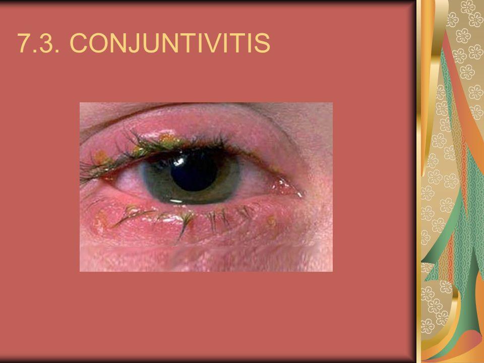 7.3. CONJUNTIVITIS