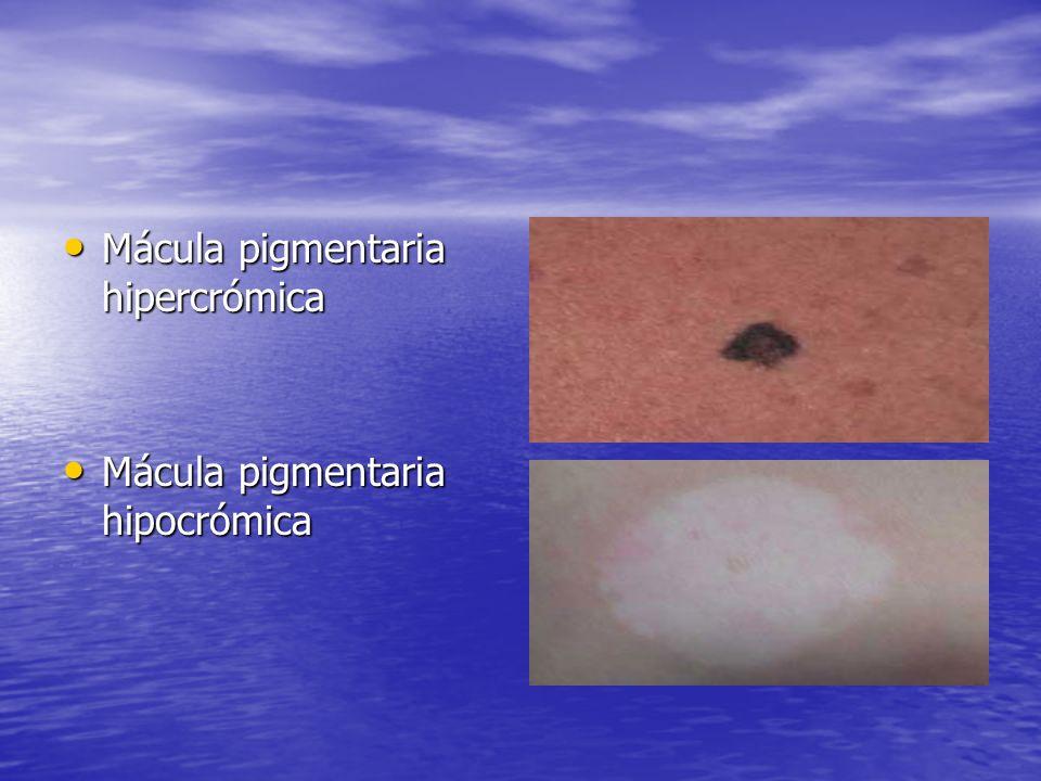 Mácula pigmentaria hipercrómica Mácula pigmentaria hipercrómica Mácula pigmentaria hipocrómica Mácula pigmentaria hipocrómica