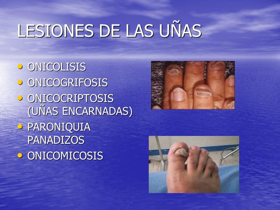 LESIONES DE LAS UÑAS ONICOLISIS ONICOLISIS ONICOGRIFOSIS ONICOGRIFOSIS ONICOCRIPTOSIS (UÑAS ENCARNADAS) ONICOCRIPTOSIS (UÑAS ENCARNADAS) PARONIQUIA PA