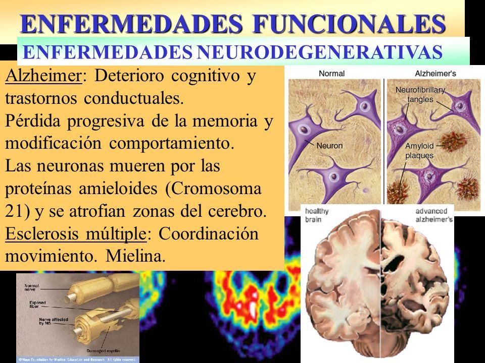 ENFERMEDADES FUNCIONALES Alzheimer: Deterioro cognitivo y trastornos conductuales. Pérdida progresiva de la memoria y modificación comportamiento. Las