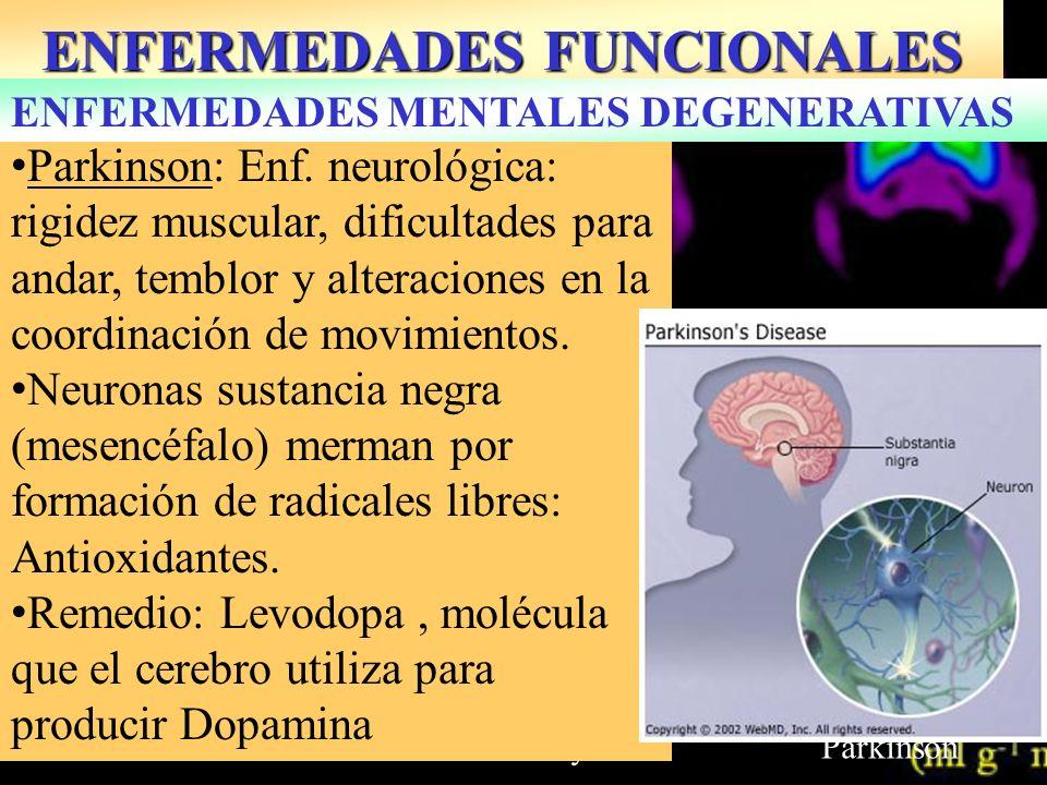 Normal MayorParkinson ENFERMEDADES FUNCIONALES Parkinson: Enf. neurológica: rigidez muscular, dificultades para andar, temblor y alteraciones en la co