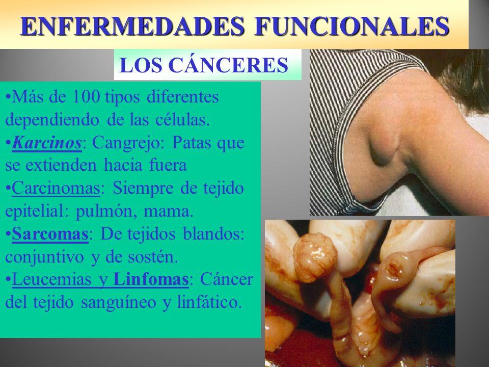 ENFERMEDADES FUNCIONALES LOS CÁNCERES Más de 100 tipos diferentes dependiendo de las células. Karcinos: Cangrejo: Patas que se extienden hacia fuera C