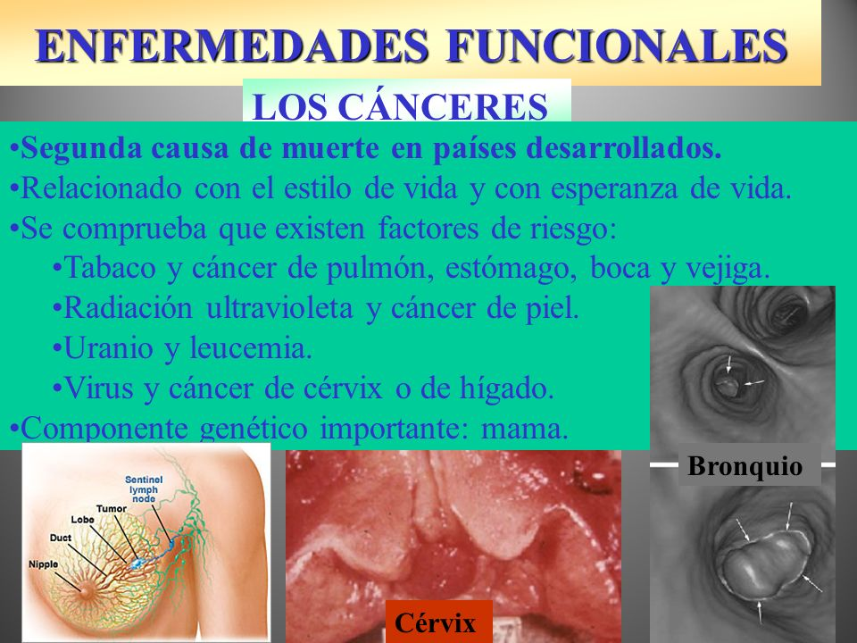 TRATAMIENTO DEL CÁNCER P53 Gen supresor de tumores No debe fallar la prevención.