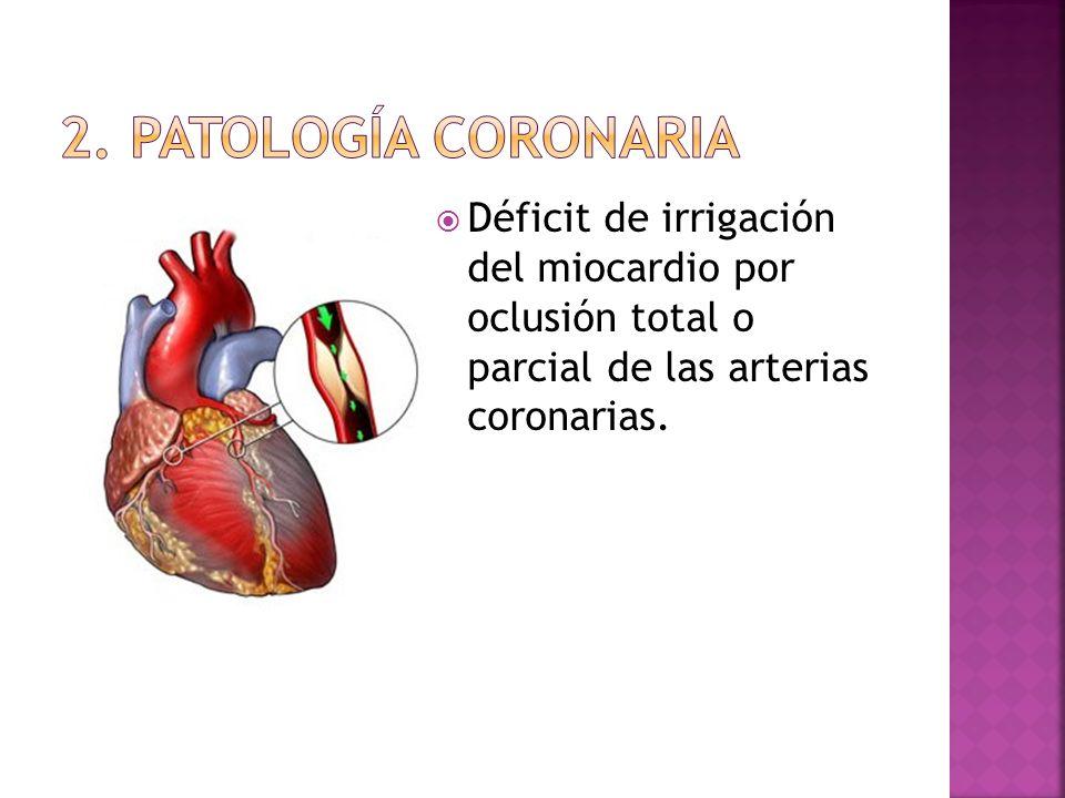 Déficit de irrigación del miocardio por oclusión total o parcial de las arterias coronarias.