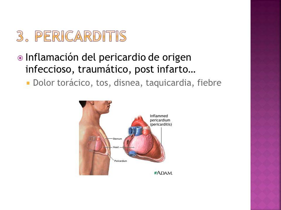 Inflamación del pericardio de origen infeccioso, traumático, post infarto… Dolor torácico, tos, disnea, taquicardia, fiebre