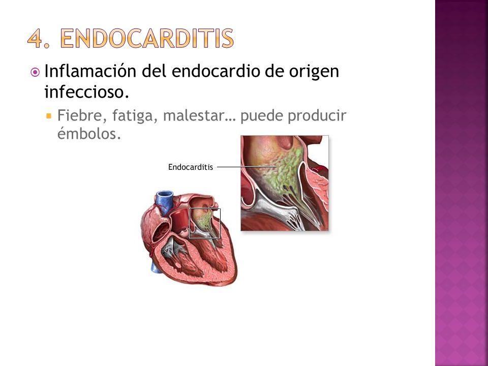 Inflamación del endocardio de origen infeccioso. Fiebre, fatiga, malestar… puede producir émbolos.