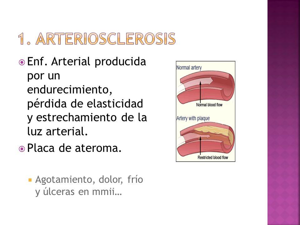 Enf. Arterial producida por un endurecimiento, pérdida de elasticidad y estrechamiento de la luz arterial. Placa de ateroma. Agotamiento, dolor, frío