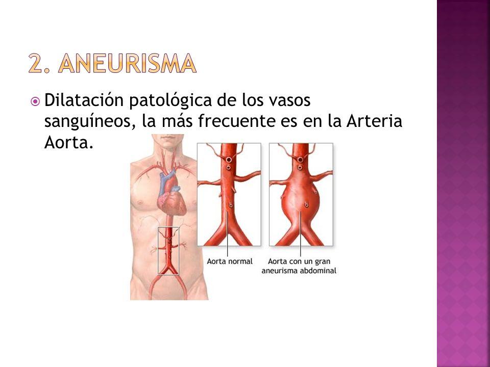 Dilatación patológica de los vasos sanguíneos, la más frecuente es en la Arteria Aorta.