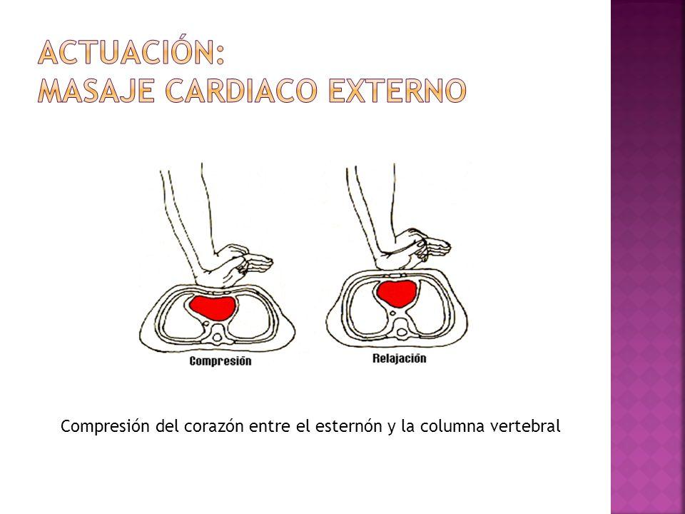 Compresión del corazón entre el esternón y la columna vertebral
