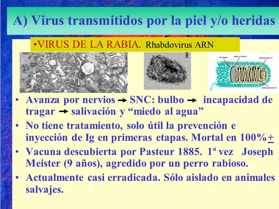 A) Virus transmitidos por la piel y/o heridas Avanza por nervios SNC: bulbo incapacidad de tragar salivación y miedo al agua No tiene tratamiento, sol