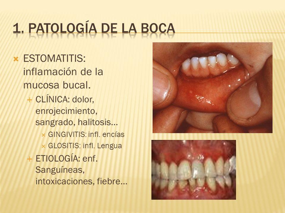 ESTOMATITIS: inflamación de la mucosa bucal.CLÍNICA: dolor, enrojecimiento, sangrado, halitosis...