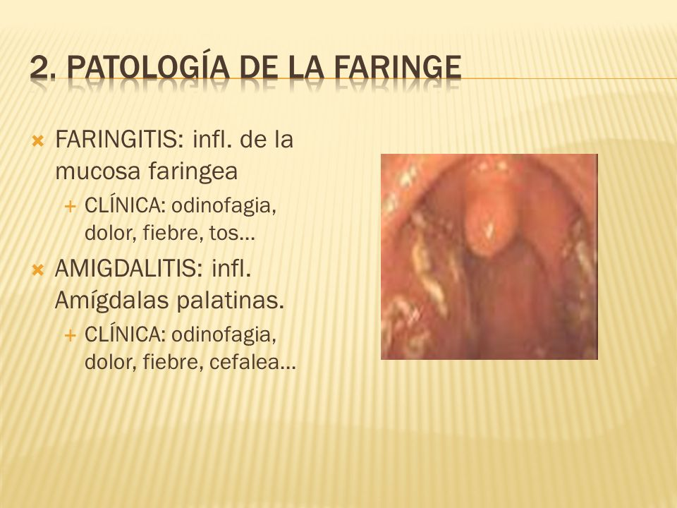 FARINGITIS: infl.de la mucosa faringea CLÍNICA: odinofagia, dolor, fiebre, tos...
