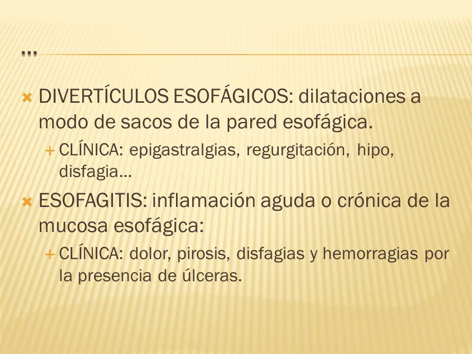 DIVERTÍCULOS ESOFÁGICOS: dilataciones a modo de sacos de la pared esofágica.