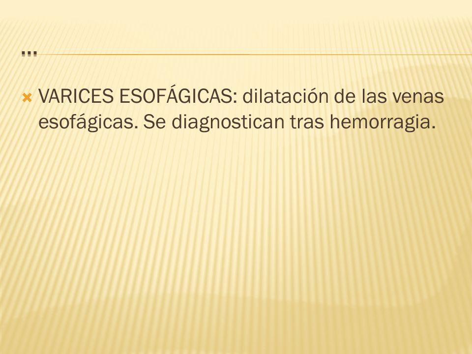 VARICES ESOFÁGICAS: dilatación de las venas esofágicas. Se diagnostican tras hemorragia.