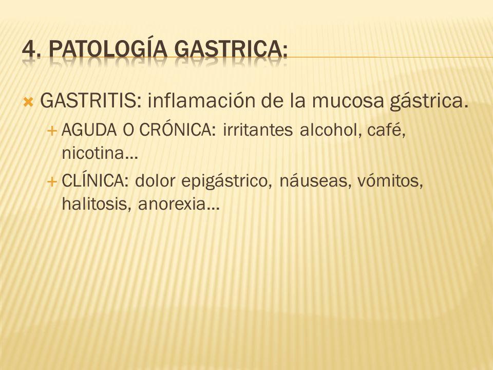 GASTRITIS: inflamación de la mucosa gástrica.