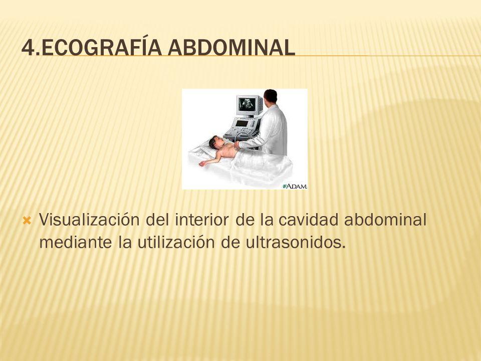 4.ECOGRAFÍA ABDOMINAL Visualización del interior de la cavidad abdominal mediante la utilización de ultrasonidos.