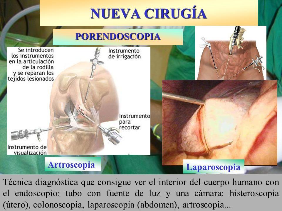 NUEVA CIRUGÍA Técnica diagnóstica que consigue ver el interior del cuerpo humano con el endoscopio: tubo con fuente de luz y una cámara: histeroscopia