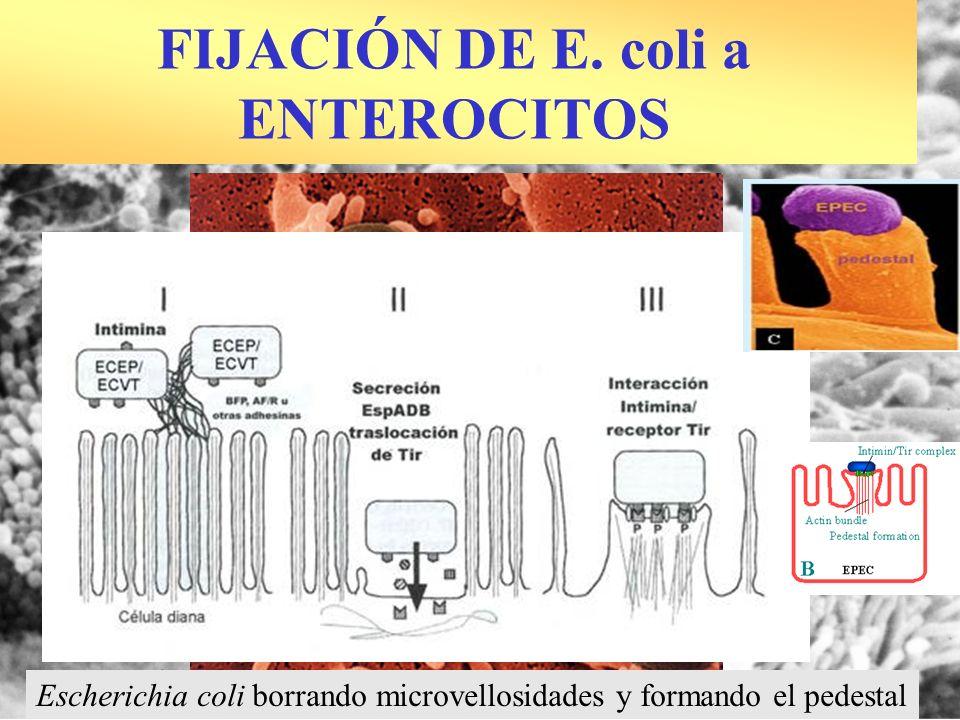 FIJACIÓN DE E. coli a ENTEROCITOS Escherichia coli borrando microvellosidades y formando el pedestal