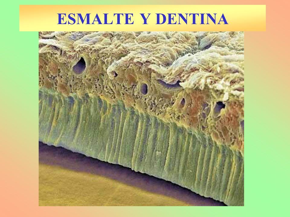 ESMALTE Y DENTINA