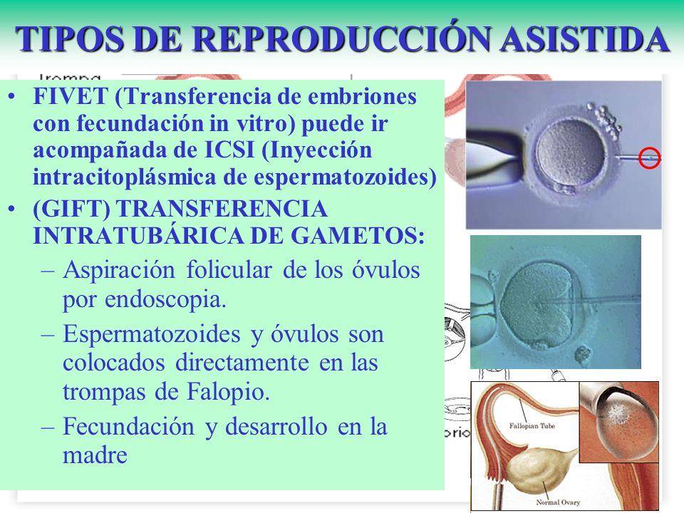 TIPOS DE REPRODUCCIÓN ASISTIDA FIVET (Transferencia de embriones con fecundación in vitro) puede ir acompañada de ICSI (Inyección intracitoplásmica de
