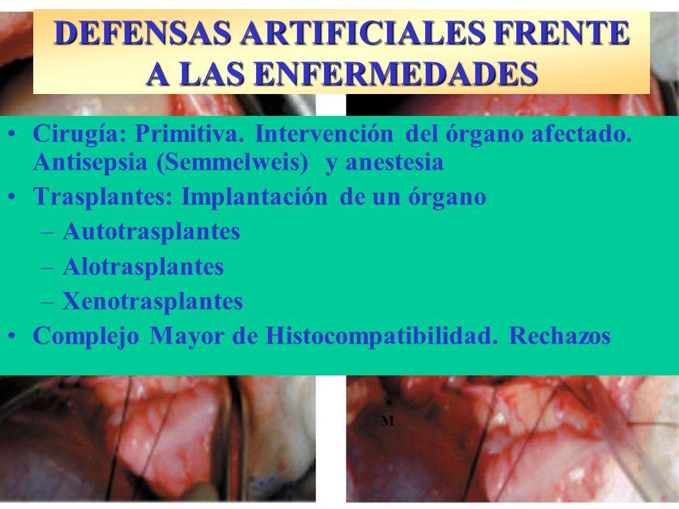 Infección septicémica SEPSIS PUERPERAL Streptococcus agalactiae I.P.