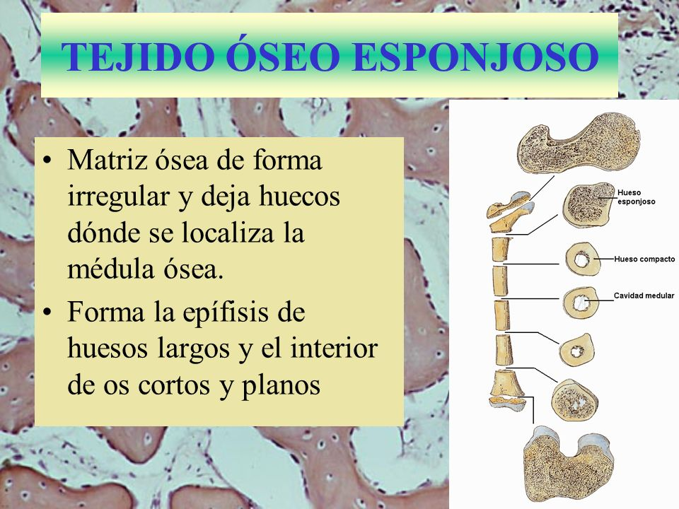 TEJIDO ÓSEO ESPONJOSO Matriz ósea de forma irregular y deja huecos dónde se localiza la médula ósea. Forma la epífisis de huesos largos y el interior