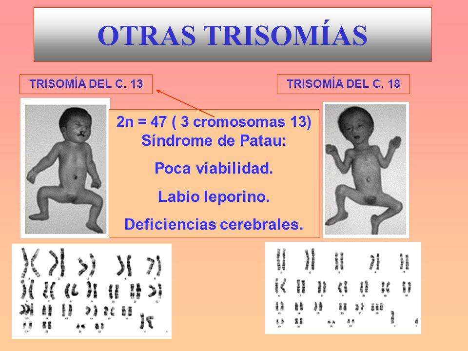 OTRAS TRISOMÍAS TRISOMÍA DEL C. 13TRISOMÍA DEL C. 18 2n = 47 ( 3 cromosomas 13) Síndrome de Patau: Poca viabilidad. Labio leporino. Deficiencias cereb