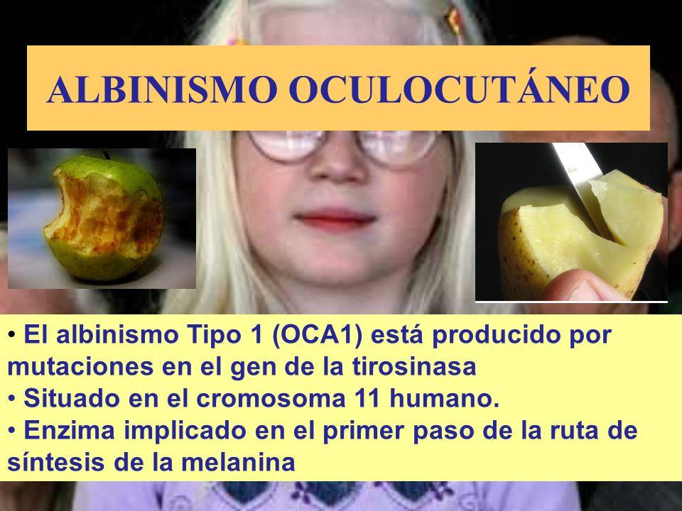 El albinismo Tipo 1 (OCA1) está producido por mutaciones en el gen de la tirosinasa Situado en el cromosoma 11 humano. Enzima implicado en el primer p