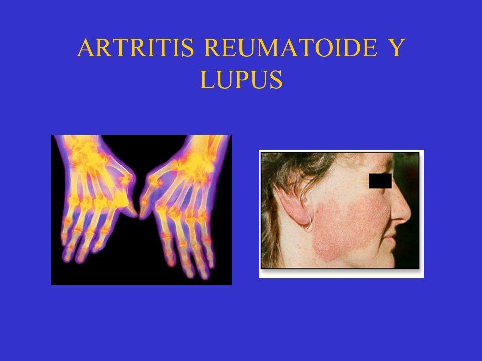 ENFERMEDADES MULTISISTÉMICAS Enfermedades que aparecen en cualquier órgano por poseer células con núcleo. Lupus eritematoso: Erupción en el rostro con